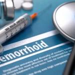 Современные методы лечения геморроя